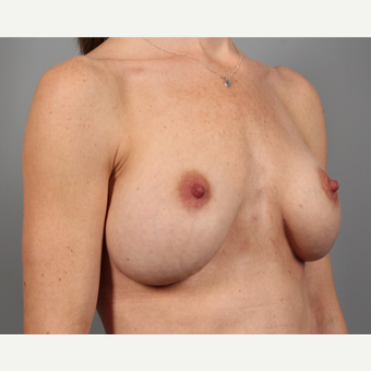 35-44 year old woman treated with Breast Implant Revision with SurgiMend before 3258631