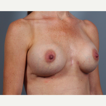 35-44 year old woman treated with Breast Implant Revision with SurgiMend after 3258631