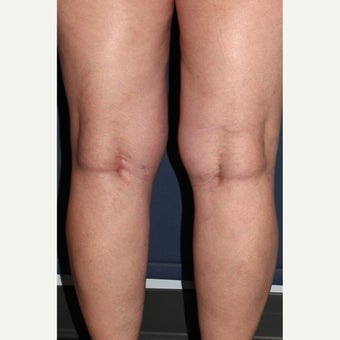 35-44 year old woman treated with Sclerotherapy
