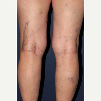 35-44 year old woman treated with Sclerotherapy before 1560167