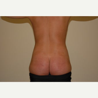 32 year old woman treated with Power Assisted Liposuction 1607259