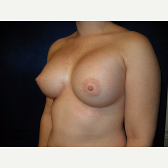 25-34 year old woman treated with Breast Implants after 3727122