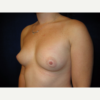 25-34 year old woman treated with Breast Implants before 3727122