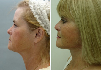 Mid Face Cheek Lift before 1360167