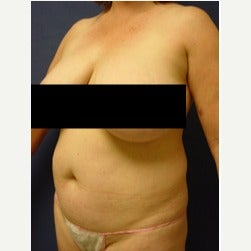 45-54 year old woman treated with Mini Tummy Tuck before 2058566