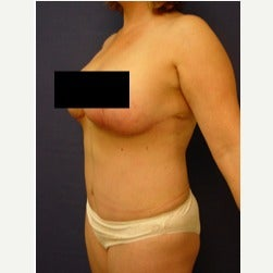 45-54 year old woman treated with Mini Tummy Tuck after 2058566