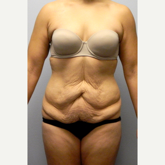 32 year old woman with a history of 110lb weight loss, treated with Tummy Tuck before 3523907
