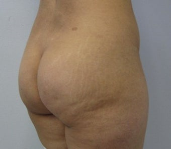 Brazilian Buttlift before 943770