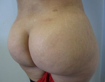 Brazilian Buttlift after 943770