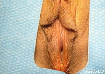25-34 year old woman treated with Vaginal Rejuvenation before 2149555