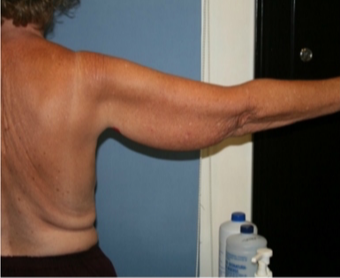 55-64 year old woman treated with Arm Lift 3170043