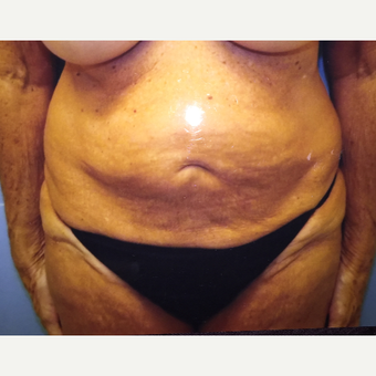 55-64 year old woman treated with Tummy Tuck before 3384431