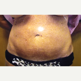 55-64 year old woman treated with Tummy Tuck after 3384431