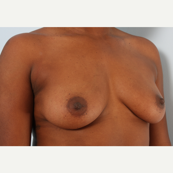 Breast Augmentation before 3340417