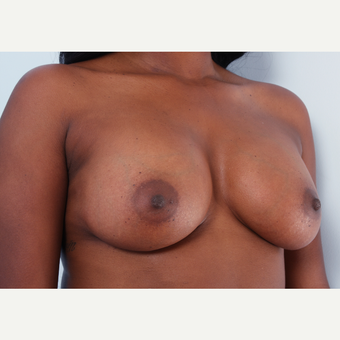 Breast Augmentation after 3340417