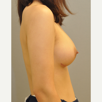 25-34 year old woman treated with Breast Augmentation after 3842611