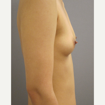 25-34 year old woman treated with Breast Augmentation before 3842611