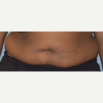 35-44 year old woman treated with Tummy Tuck before 3369848