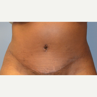 35-44 year old woman treated with Tummy Tuck after 3369848