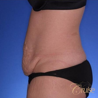28 year old had a Standard Tummy Tuck before 3584945