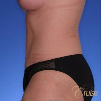 28 year old had a Standard Tummy Tuck after 3584945
