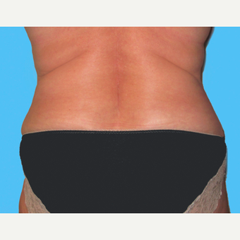 Liposuction after 3810514