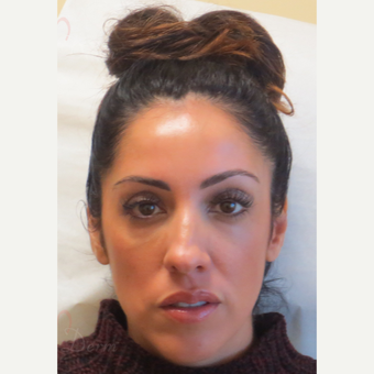 Woman treated with Liquid Facelift (Botox, Restylane & Voluma) after 3197795