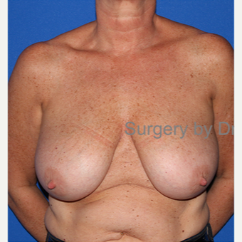 45-54 year old woman treated with Breast Reduction before 3432323