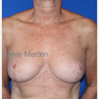 45-54 year old woman treated with Breast Reduction after 3432323