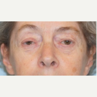 65-74 year old woman treated with Ptosis Surgery before 3727854