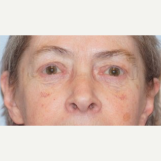 65-74 year old woman treated with Ptosis Surgery after 3727854