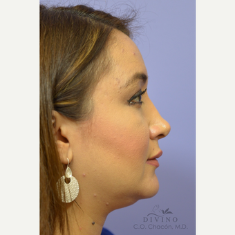 35-44 year old woman treated with Injectable Fillers after 3421858