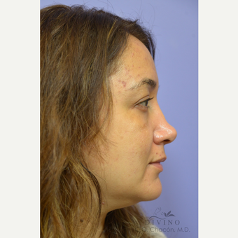 35-44 year old woman treated with Injectable Fillers before 3421858