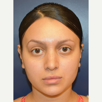18-24 year old woman treated with Rhinoplasty after 3013601