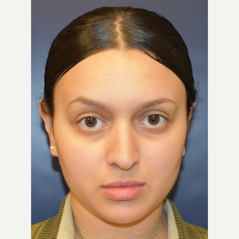 18-24 year old woman treated with Rhinoplasty before 3013601