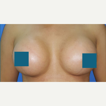 25-34 year old woman treated with Breast Augmentation after 3374817