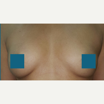 25-34 year old woman treated with Breast Augmentation before 3374817