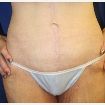 45-54 year old woman treated with Panniculectomy after 2035994