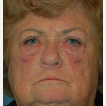 65-74 year old woman treated with Eyelid Surgery before 2885547