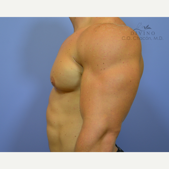 25-34 year old man treated with Male Breast Reduction before 3421527