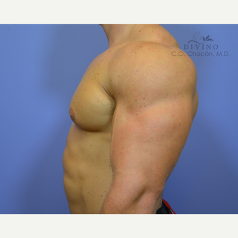 25-34 year old man treated with Male Breast Reduction after 3421527