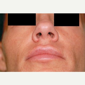 35-44 year old woman treated with Rhinoplasty before 3406256