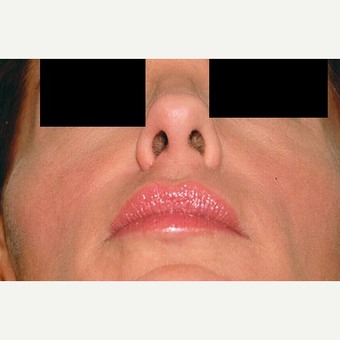 35-44 year old woman treated with Rhinoplasty after 3406256