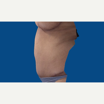 45-54 year old woman treated with Tummy Tuck after 3037506