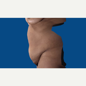 45-54 year old woman treated with Tummy Tuck before 3037506