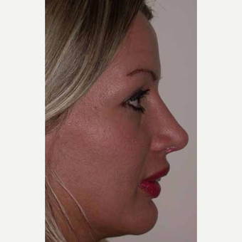 35-44 year old woman treated with Rhinoplasty after 3521242