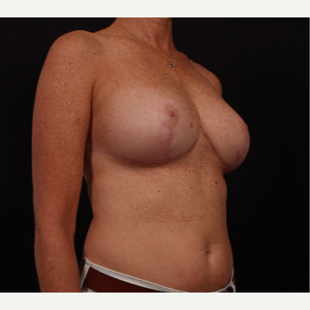 45-54 year old woman treated with Breast Reduction after 3695870