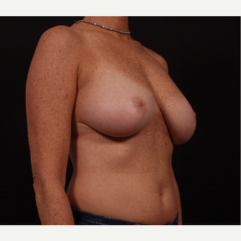45-54 year old woman treated with Breast Reduction before 3695870
