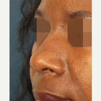 45-54 year old woman treated with Non Surgical Nose Job after 3244839