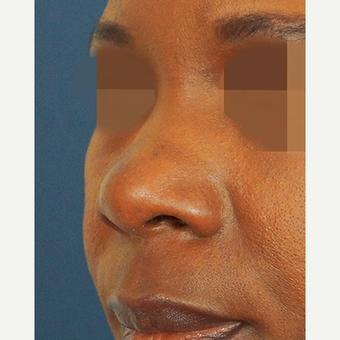 45-54 year old woman treated with Non Surgical Nose Job before 3244839